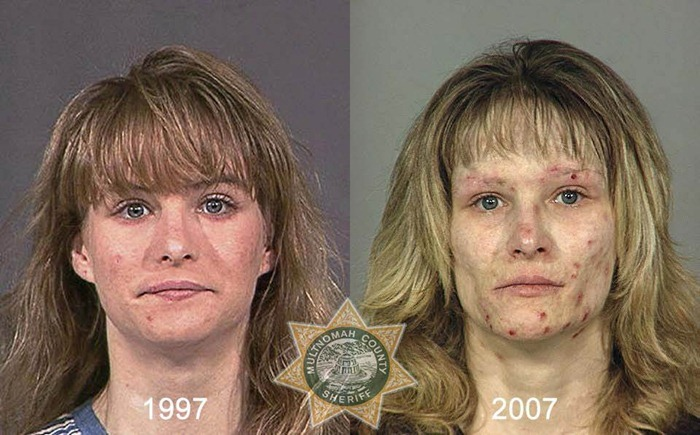 drug_abusers_before_and_after_19
