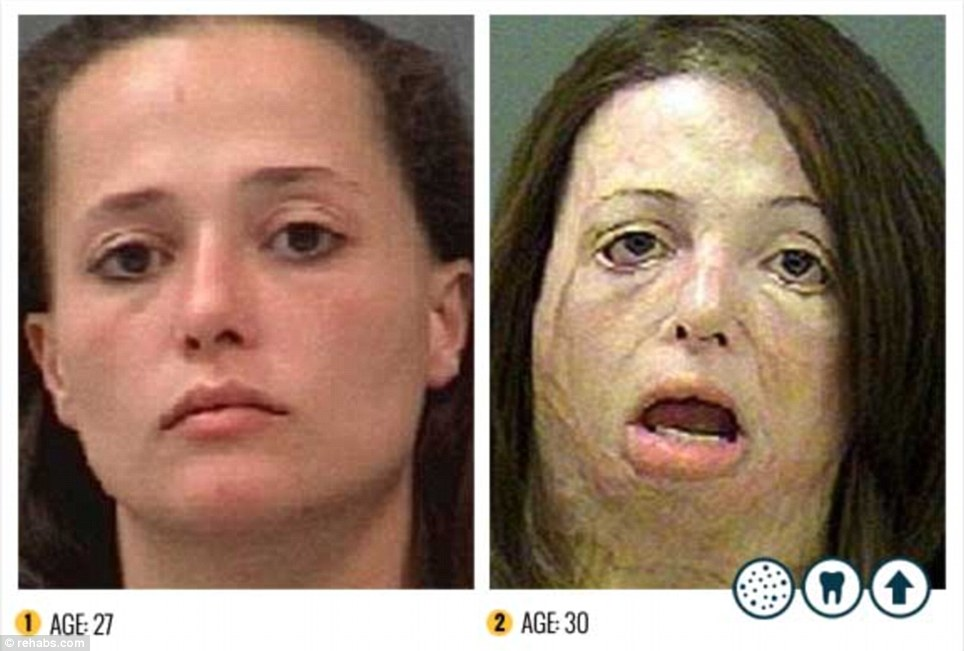 drug_abusers_before_and_after_25
