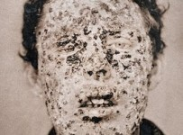 small pox victim in new york city 1881