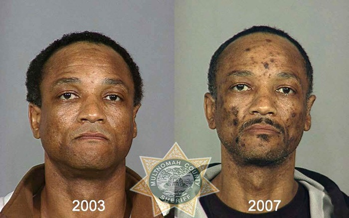 drug_abusers_before_and_after_16