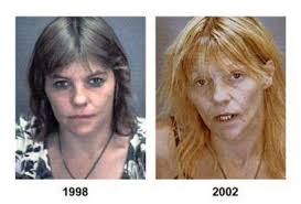 drug_abusers_before_and_after_27