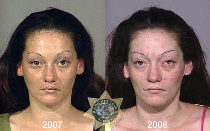 drug_abusers_before_and_after_30
